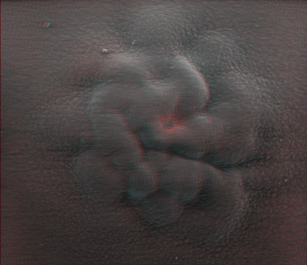 Red-blue anaglyph of HepG2 cell spheroid under a gelatine matrix.